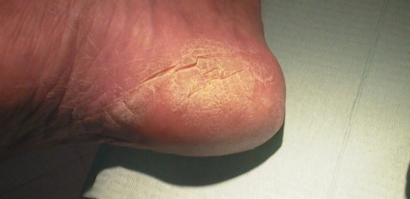 Cheratodermia